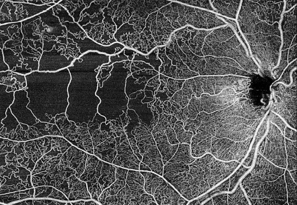zeiss-plex-elite-ss-oct-hd-angiography.jpg